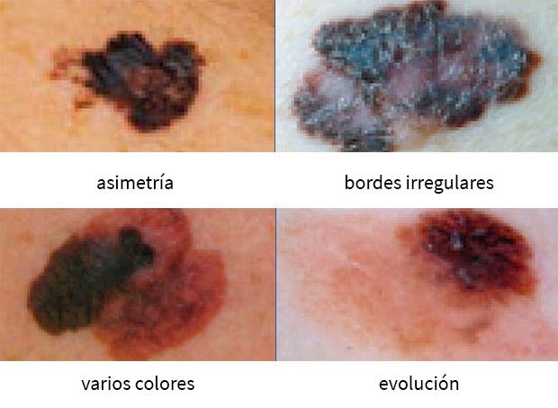 sintomas y rasgos de un melanoma (cáncer de piel)