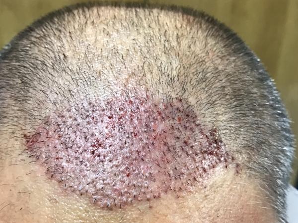 trasplante capilar FUE en Valencia - resultado tras la intervención