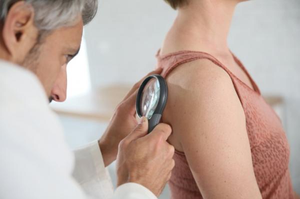 Manchas y melanoma: todo lo que debes saber para revisar tu piel
