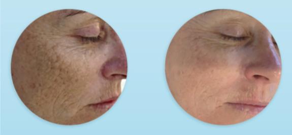resultados de dermapen en tratamiento de arrugas y manchas solares (4 sesiones)