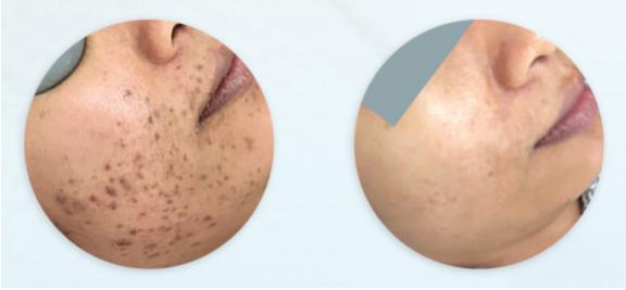 resultados de dermapen tras tratamiento de acne (3 sesiones)