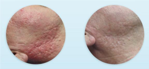resultados dermapen tras tratamiento de acne (3 sesiones)