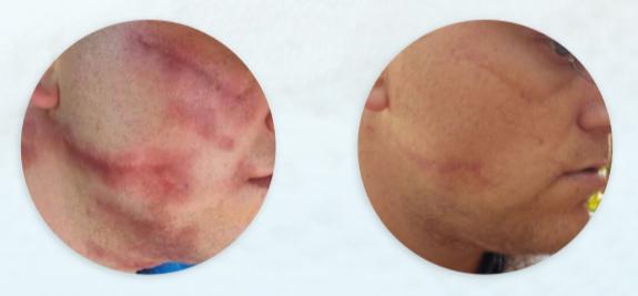 resultados de dermapen tras tratamiento de cicatrices (3 sesiones)