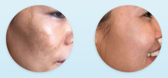 resultados de dermapen tras tratamiento de melasma (manchas) (3 sesiones)